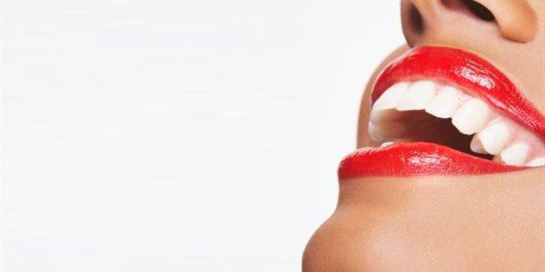 Faccette ed Intarsi, cosa sono e perché vengono utilizzati